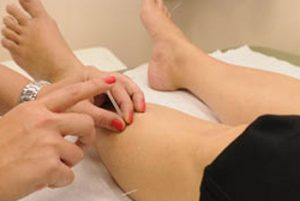 Acupuncture Leeds